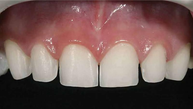 faceta de porcelana desgastes nos dentes