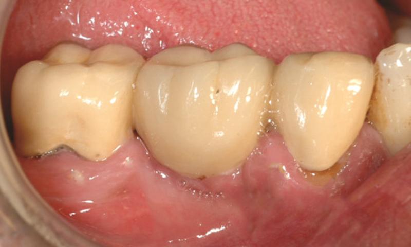 halitose e prótese dentária