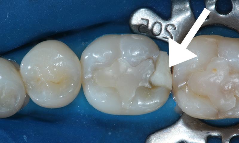 restauração dentária infiltrada