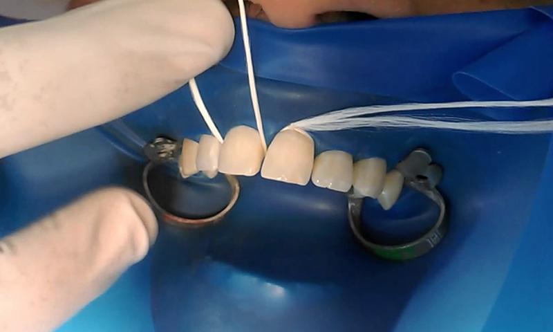 restauração dental em resina gengiva retraída