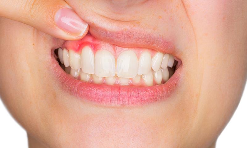 restauração em resina em raiz dentária exposta
