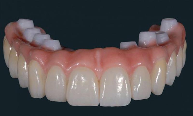 dentadura fixa em zircônia