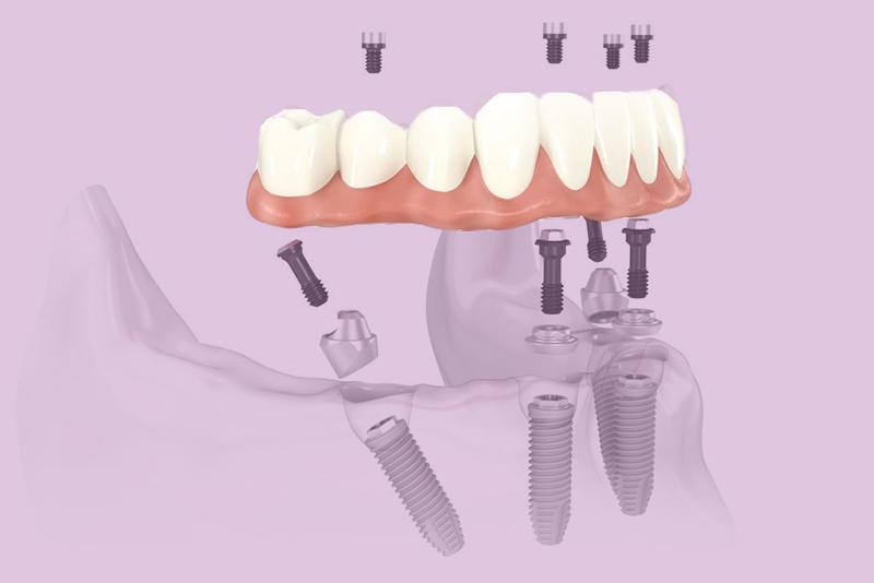 prótese dentária overdenture post blog