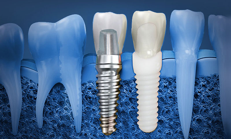 protese dentária protocolo post blog