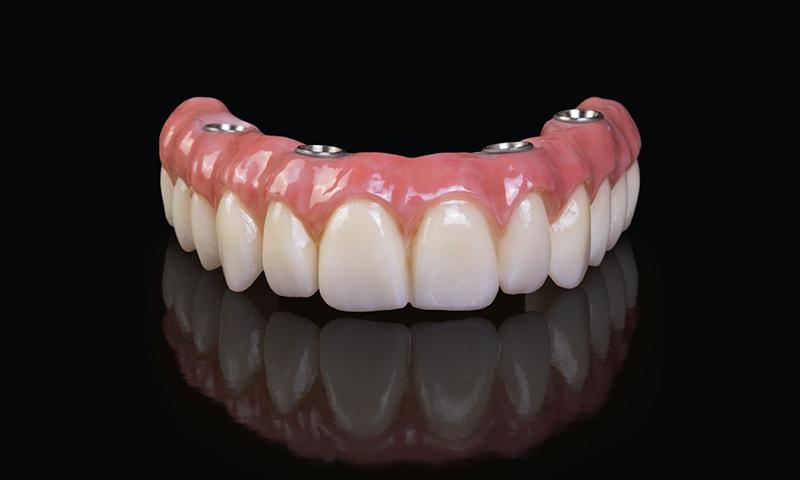 protese dentaria protocolo em porcelana sobre estrutura em metal