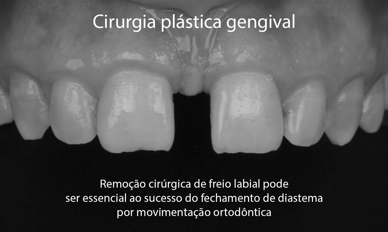 aparelho ortodôntico diastema espaço entre dentes