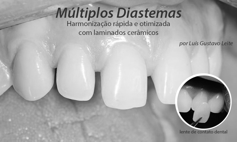 diastema fechamento com lente de contato dental