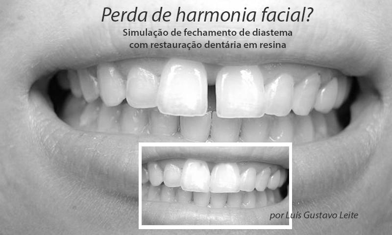Diastema fechamento com restauração dentária em resina