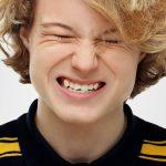 Faceta de resina pode ser utilizada para recuperar dente quebrado.