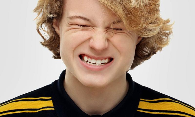 faceta de resina e dente quebrado post blog