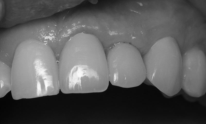 gengiva sangrando implante dentário dental