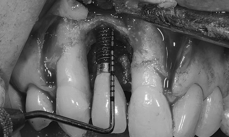 infecção do implante dentário dental