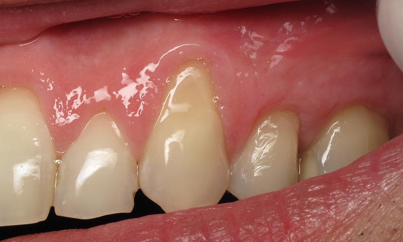 retração gengival escova dentária trauma