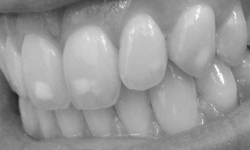 microabrasão dental indicações
