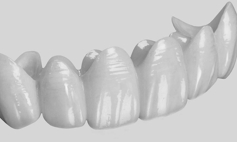 prótese dentária fixa em porcelana pura em pôntico