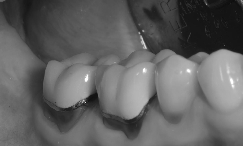 prótese dentária fixa metalocerâmica