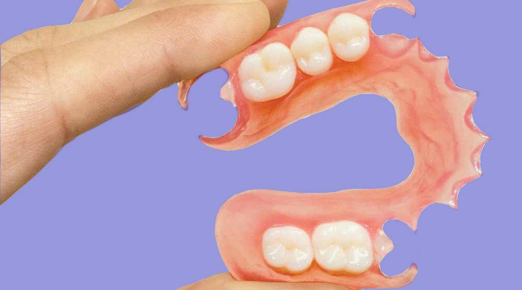 prótese dentária flexivel durabilidade prós e contras post blog