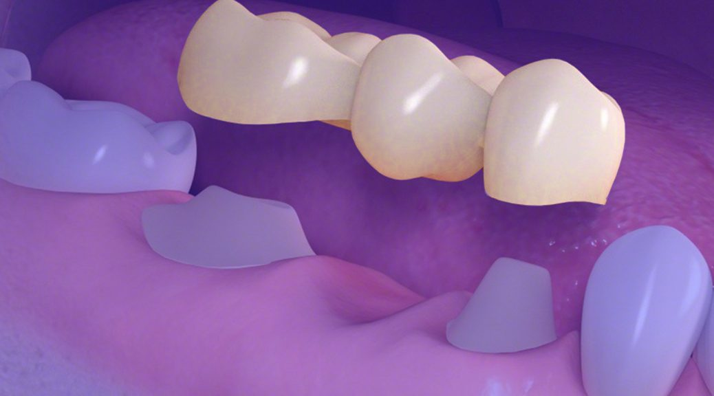 protese dentaria em porcelana substituir implante dentario