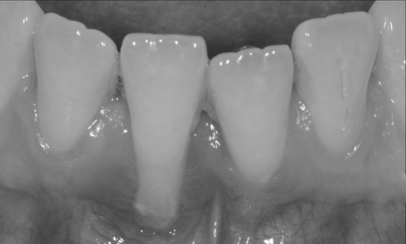retração gengival periodontite