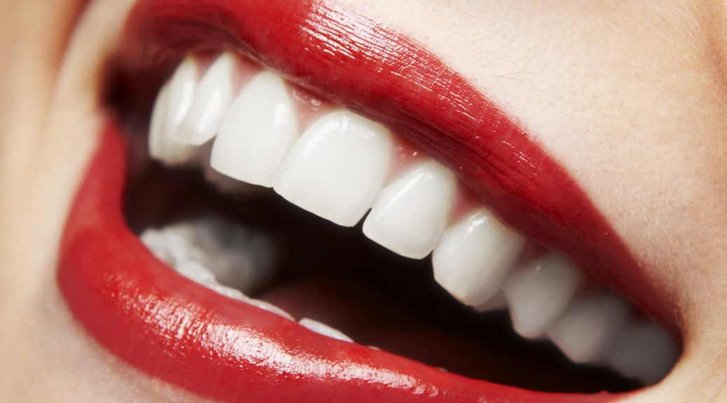 gengivoplastia lente de contato dental post blog