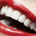 Gengivoplastia prévia à lente de contato dental traz estética de impacto.