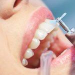 Limpeza dental: dos dentes às gengivas, bem mais do que você imagina.