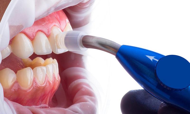 microabrasão dental prós e contras