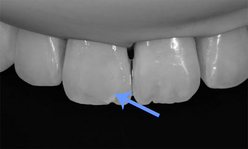 microabrasão do esmalte dental remoção de manchas