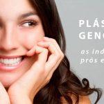 Plástica gengival: as indicações, prós e contras super explicadas.