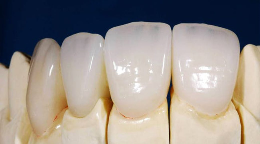 protese dentaria em porcelana pura e zircônia diferença