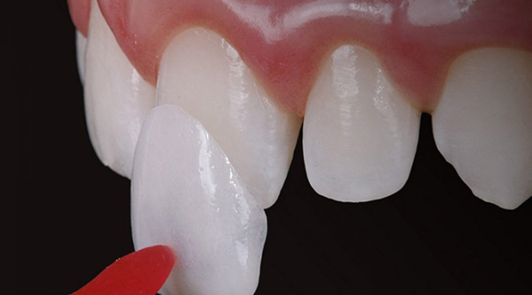 faceta de resina ou lente de contato dental diferença qual é melhor