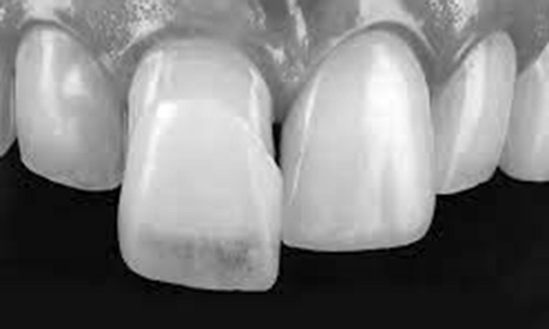 lente de contato dental ou faceta de resina qual é melhor