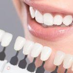 Pivô dentário em 7 dicas essenciais para trocar ou iniciar o tratamento.