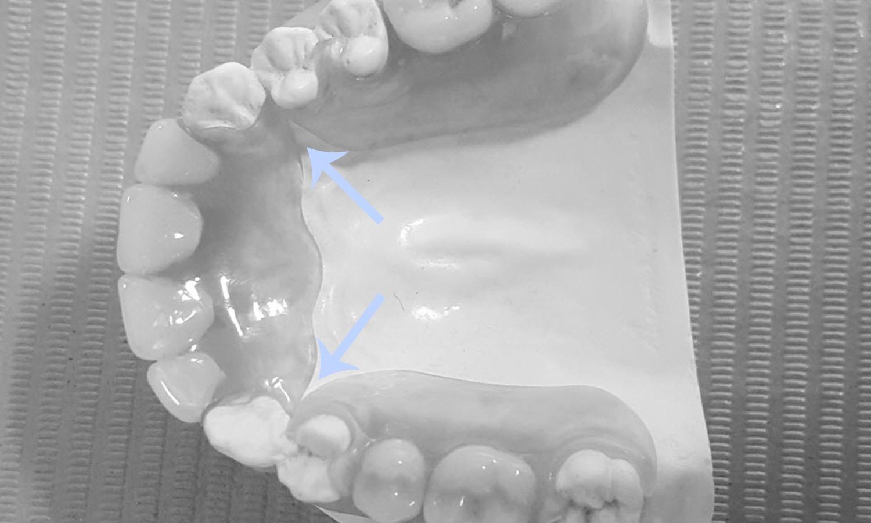 prótese dentária com grampo estético problemas