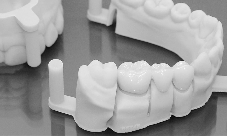prótese dentária fixa em porcelana pôntico