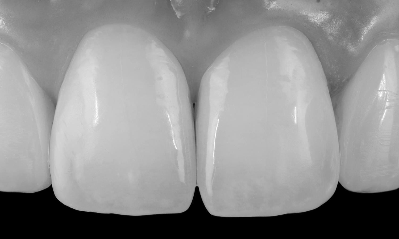 prótese dentária fixa em porcelana pura