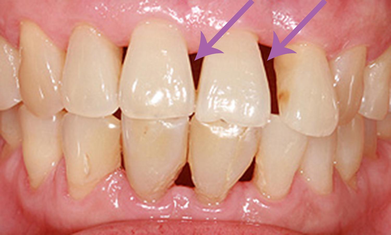 retração gengival causas periodontite
