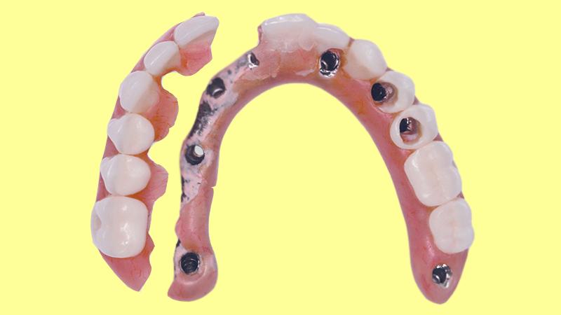 prótese-dentária protocolo pros e contras