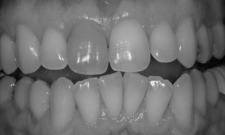 dente escurecido após tratamento de canal