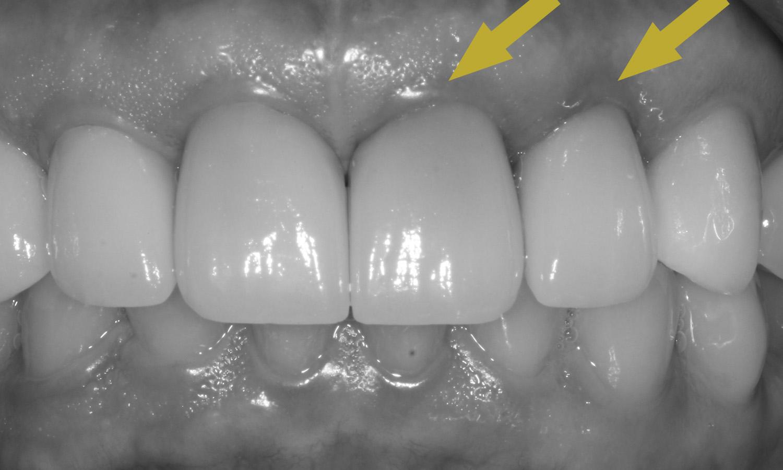 dente escurecido na gengiva