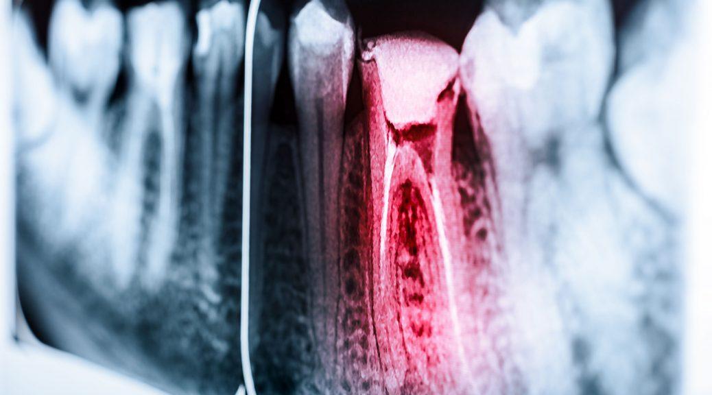 dente escurecido por trauma blog post