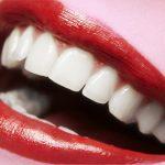 Estética gengival: próteses dentárias exigem gengivas alinhadas.
