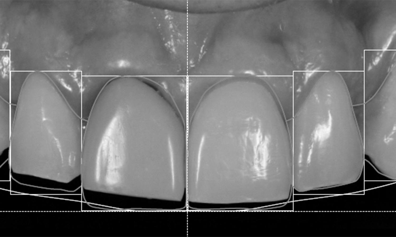 estetica gengival e protese dentaria