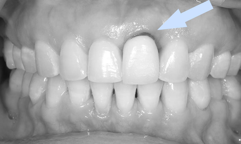 gengiva escurecida e escura prótese dentária