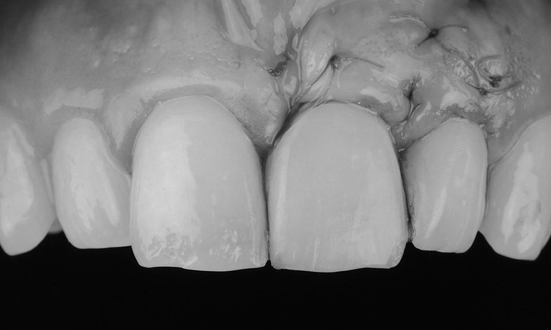 pos-operatório na plástica gengival gengivoplastia