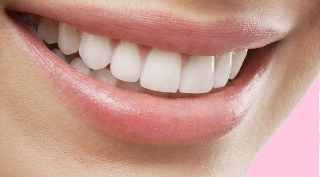 lente de contato dental em resina post blog