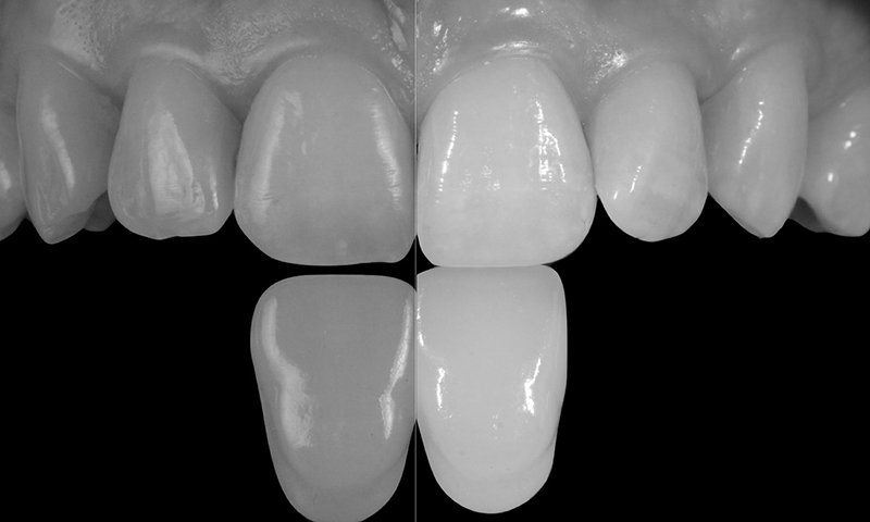 lente de contato dental resina cor branco