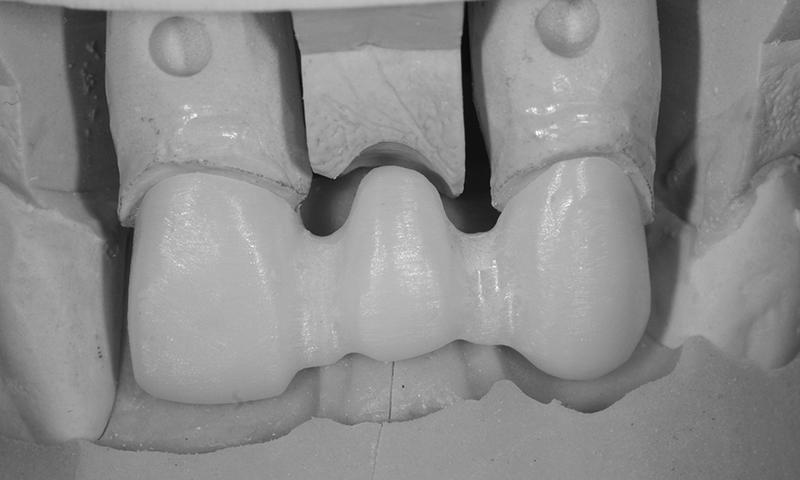 prótese de zircônia e porcelana
