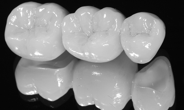 prótese dentária em zircônia e porcelana dente posterior