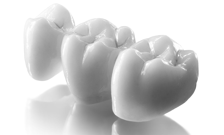 prótese dentária em zircônia pôntico fixo